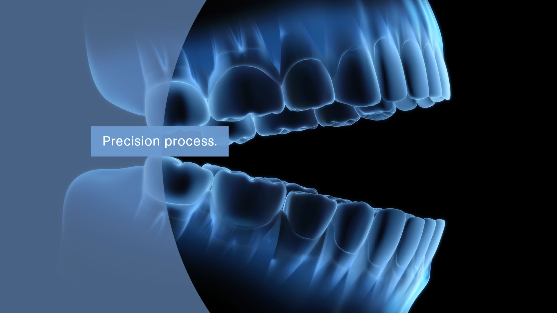 precision process dental technology