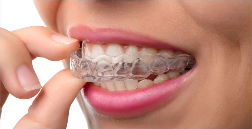 clear mouth guard in mouth